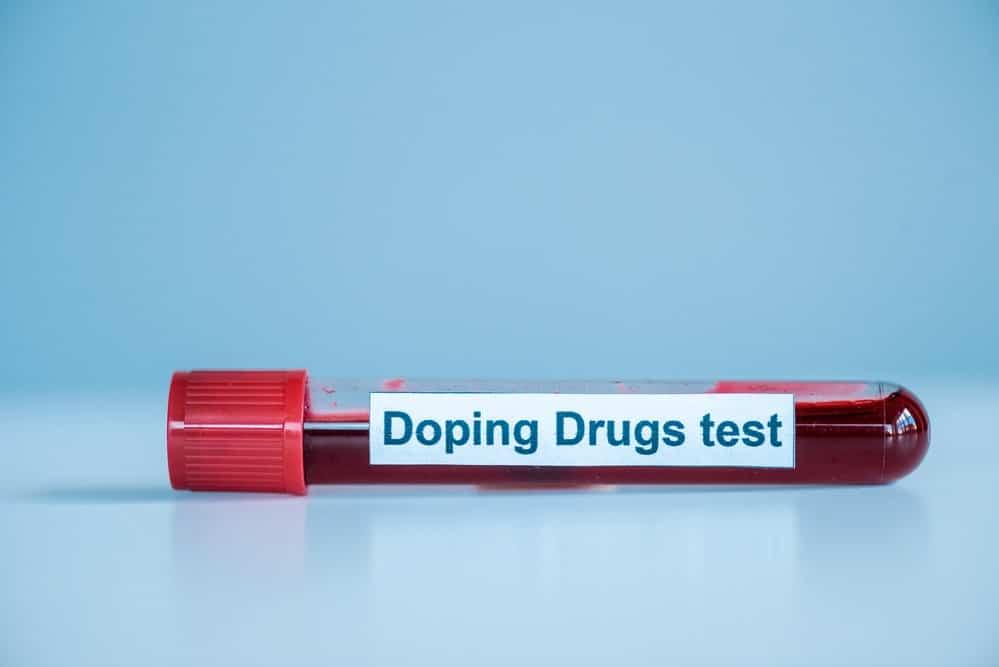 test para los esteroides y dopaje